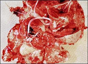 Heartworm Becoming Resistant to Treatment!  Heartworm